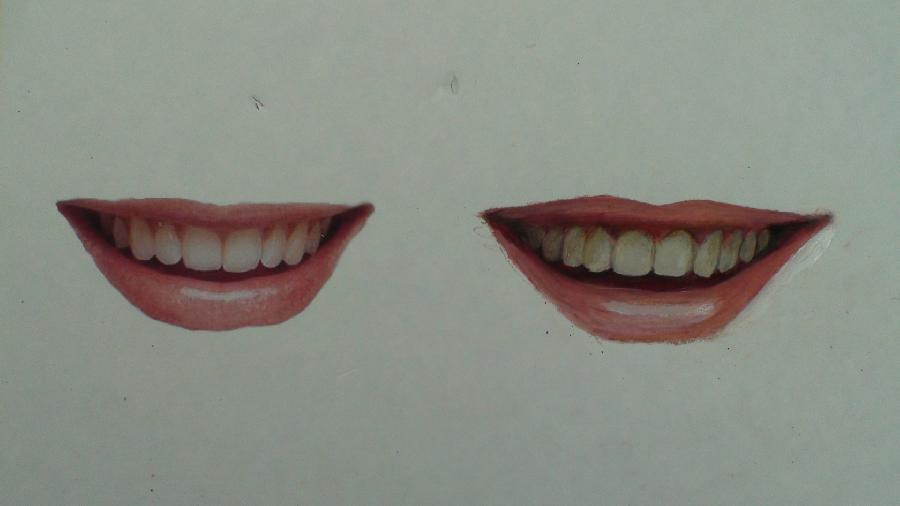 How to Draw a Smile, Mouth, Teeth. <p><object width=`425` height=`344` data=`https://www.youtube.com/v/uaseJIeWEQw&hl=en_US&fs=1&` type=`application/x-shockwave-flash`><param name=`allowFullScreen` value=`true` /><param name=`allowscriptaccess` value=`always` /><param name=`src` value=`https://www.youtube.com/v/uaseJIeWEQw&hl=en_US&fs=1&` /><param name=`allowfullscreen` value=`true` /></object></p><p> Part 1- I will start this drawing by taking a second to look at my reference photograph on the left. I try to see the mouth as one big shape first and I try to match that shape as best as I can to start. Next, I break the mouth in to three smaller shapes. I notice that the top lip looks like a flattened McDonalds Arch and the bottom lip looks similar to a crescent moon shape. The area in between is more complex but that is ok since I can create that shape by noticing the nuances of upper and lower lip. Part 2- Take a second to notice that the lower lip is slightly fuller than the top lip. This is true for every person. Once I am somewhat satisfied with the upper and lower lip, I start to notice the space between the lips. That space is divided between the upper teeth and the negative space below the teeth. Please notice that when a person smiles, the bottom lip comes up and blocks the lower set of teeth. Many people make the mistake of drawing the upper and lower teeth in a smile. While drawing the teeth, I am very careful about not pressing too hard. Notice that there are NO dark tones, separating the teeth, only light to medium ones. The front of our face is rounded and the formations of the upper and lower sets of teeth are in a horseshoe shape. When drawing a person from the front, notice that as the teeth go further back towards the throat, they become more foreshortened. Also, as the teeth go back towards the throat, they are blocked more in a smile by the lips and are more shadowed. Be careful because this can easily be overdone. The color of the teeth are not white, they are bone colored, which is a cool off white. It is a conscious choice for me to start this drawing with color pencil. I use color pencil because the fine tip of the color pencil gives me a lot of accuracy, and also because, color pencils can be mixed with oil paint. You will see me mix color pencil with oil paint in step four. Part 3- At this point I am satisfied with the placement of all of my shapes. Once that task is accomplished, I focus on building tones and colors. In other words, my focus to this point has been to get all of the pieces of the puzzle in to the right place and now, I can have fun by mixing colors and matching tones. I try to also notice the qualities of the edges of shapes. For instance, there is a fuzzy, unclear edge between the upper lip and the gums above the teeth. It is there but it is hard to see. In contrast, there is a solid, distinct edge between the upper teeth and the darker area of negative space, below the teeth. Color pencil is a great medium for a contemporary artist to learn. I greatly value the accuracy and detail work that can be achieved with color pencils. The flaws to this medium is that color pencil cannot be layered as well as paint, since it doesn`t fully dry. Its biggest strength is also a big weakness. The fine tip of the color pencil, covers surfaces at an extremely slow rate. Both weaknesses can be fixed however. I found that if you dip a paintbrush in a painting medium called Liquin and start to paint, the color pencils essentially pick up the properties of oil paint. In the next step, I will use liquin and mix it with both the oil paint atop of the color pencil. Part 4- Now I am painting with Liquin and oil paint over the color pencil. They are very compatible with each other and are essentially made with the same materials. The pigment of the color pencil is bound with wax; and wax has been used in parts of many painting mediums throughout the history of oil painting. Oil paint is considered a traditional medium but many of its artistic capabilities have not yet been matched by other, newer mediums. Oil paint gives to the ability to work opaque, transparently and translucently. Today, I am using the combination of the oil paint and the liquin to soften my color pencil drawing below. I am using small soft paintbrushes and they pick up some of the color that was left below. The paintbrush is a great tool to create soft blends. That makes perfect sense if you compare it to the tip of a color pencil I hope that you have enjoyed this video and I hope that you learned something. Feel free to ask me questions and please subscribe to my channel if you like concise, information rich videos on art.</p>