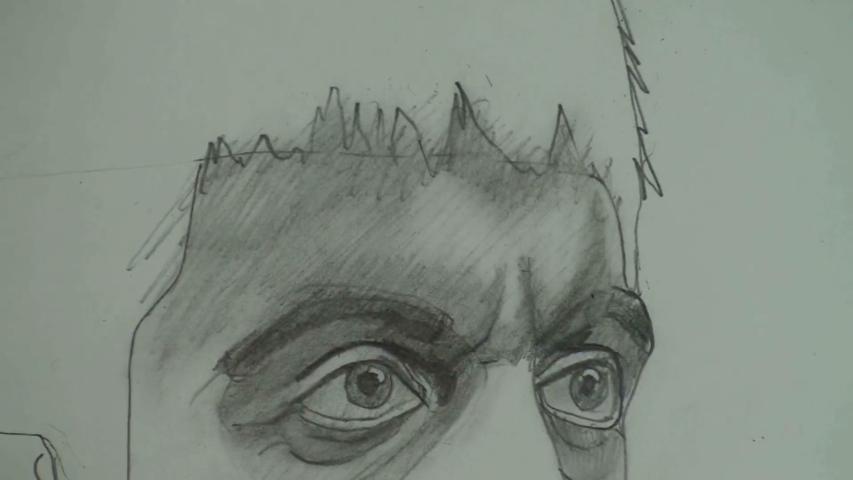 forehead 3