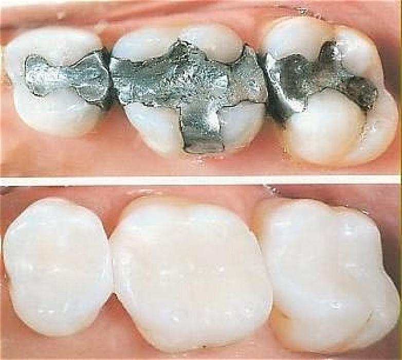 Tooth-colored-fillings..
