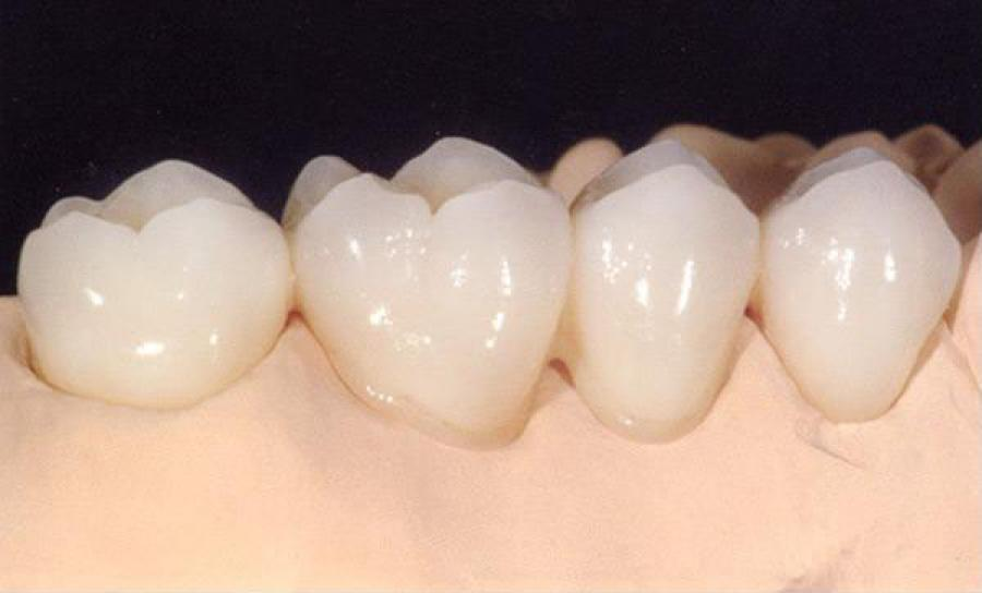 Porcelain Crowns and Bridges